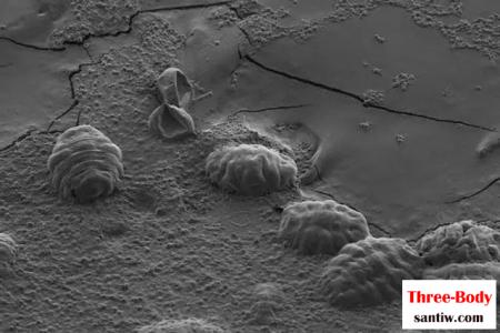 科学家发现疑似三体人脱水基因